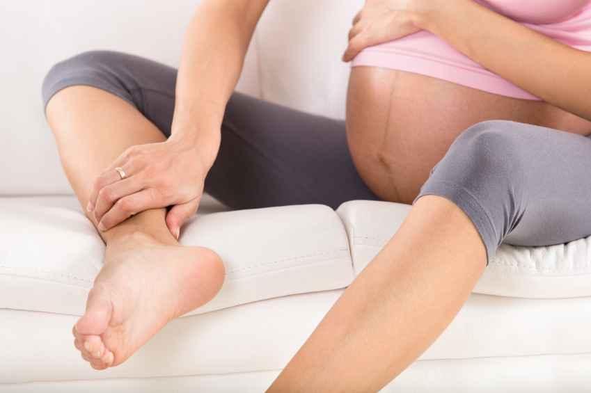 درمان واریس در بارداری