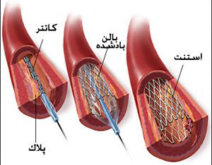 آنژِیوگرافی قلب