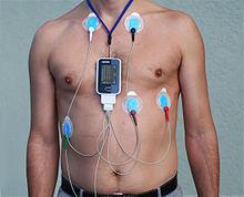 هولتر 24 ساعته ضربان قلب و فشار خون