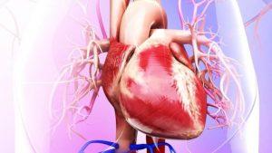 آنژِیوگزافی قلب