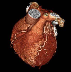 آنژِوگرافی قلبی