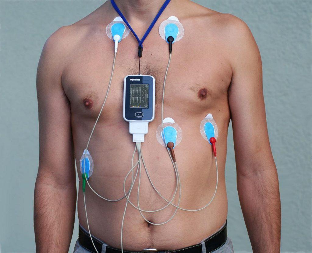 گرفتن نوار قلب نحوه گرفتن نوار قلب دکتر نادر افشاری متخصص قلب