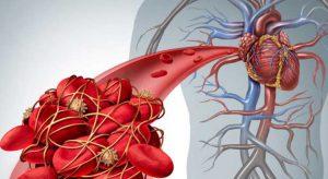 آمبولی ریه 1