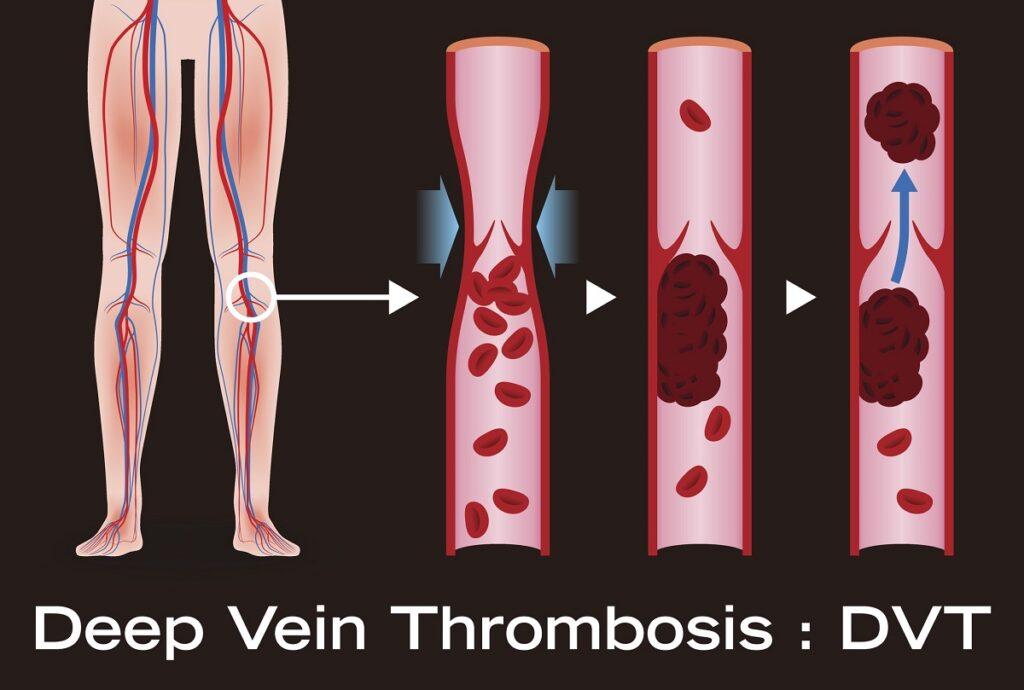 آمبولی ریه از عوارض ترومبوز وریدی عمقی