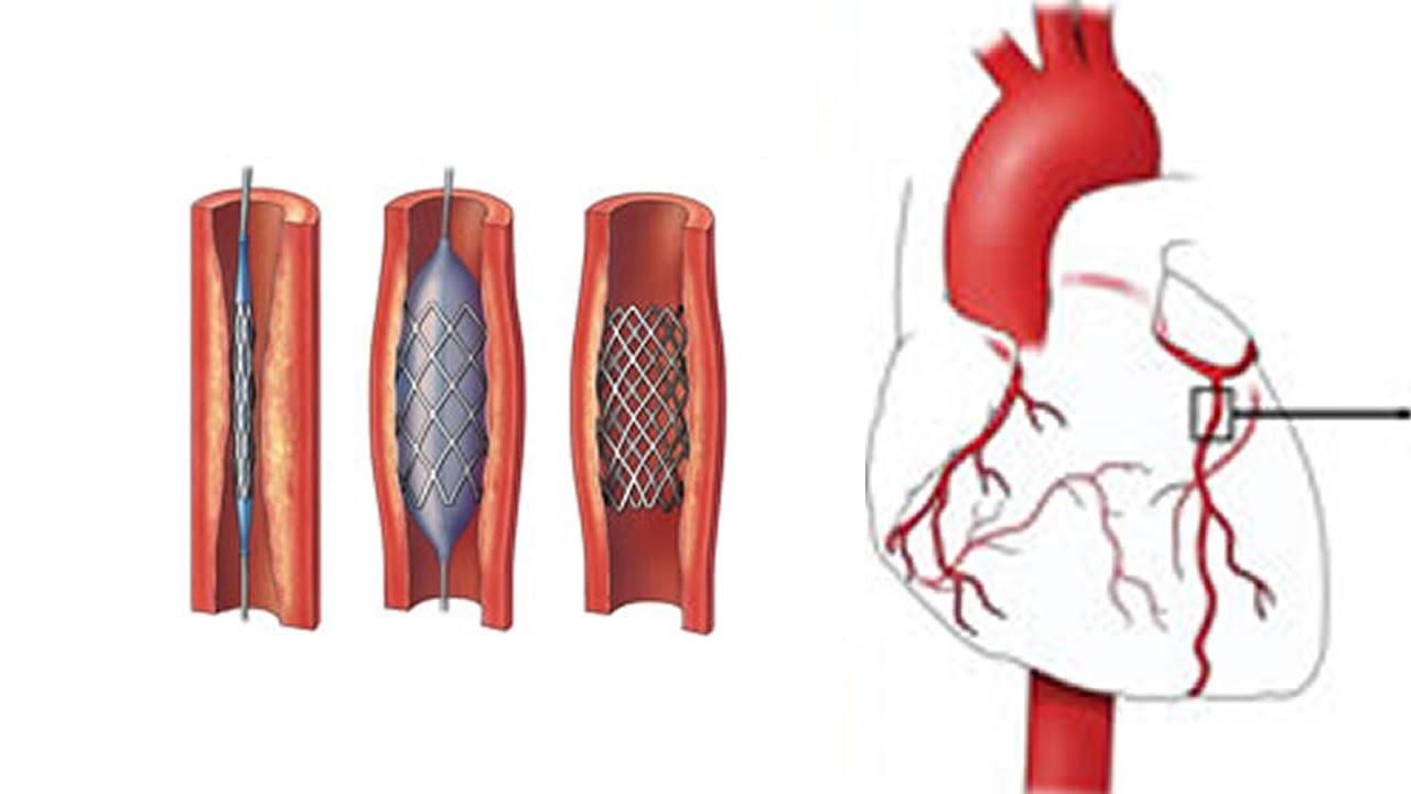 آنژیوپلاستی برای رفع گرفتگی عروق کرونر - درمان سکته قلبی