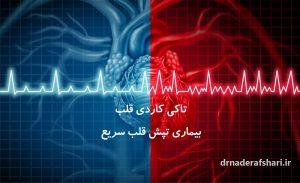 تاکی کاردی :بیماری تپش قلب سریع
