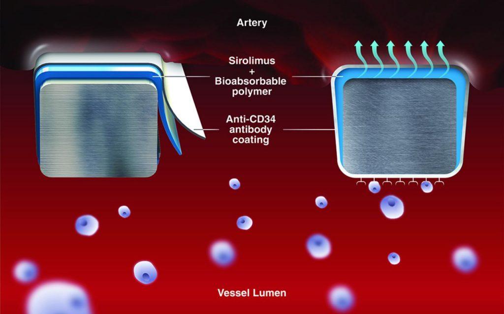 استنت درمان دوگانه دارویی - فلزی