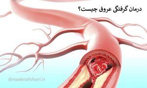 چرا رگ قلب می گیرد؟ درمان گرفتگی عروق چیست؟
