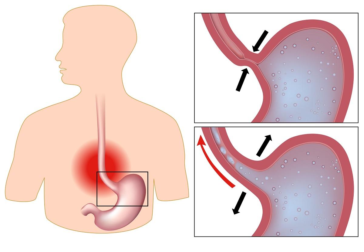 رفلکس معده عامل سوزش قلب و درد سینه