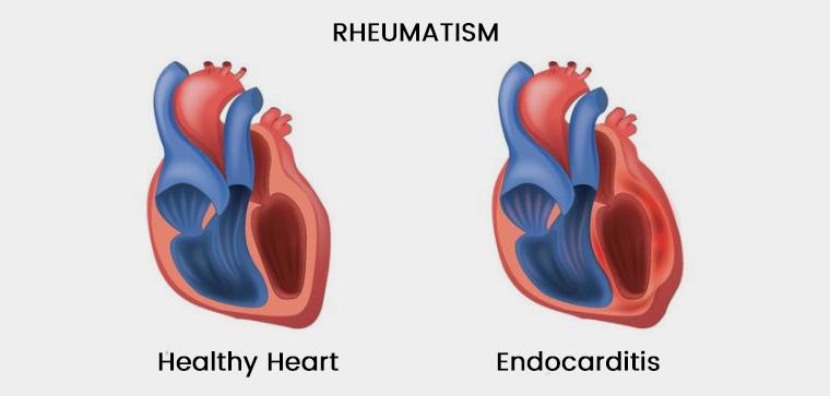 التهاب ناشی از روماتیسم قلبی