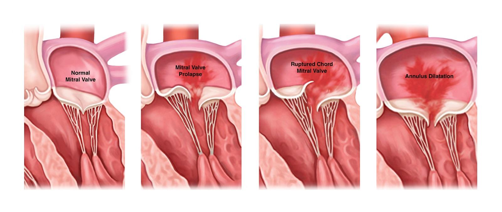 علل بازگشت خون دریچه میترال قلب