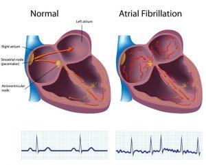 ارتباط فیبریلاسیون دهلیزی با سکته قلبی