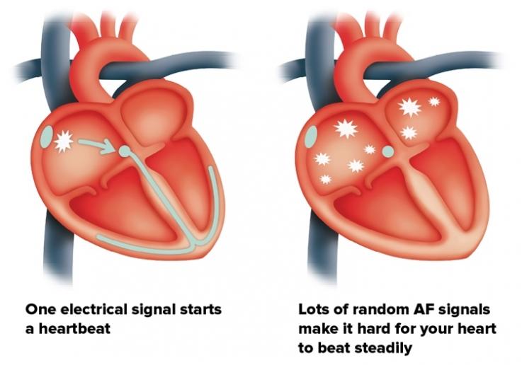 ضربان نا منظم قلب به علت فیبریباسیون دهلیزی