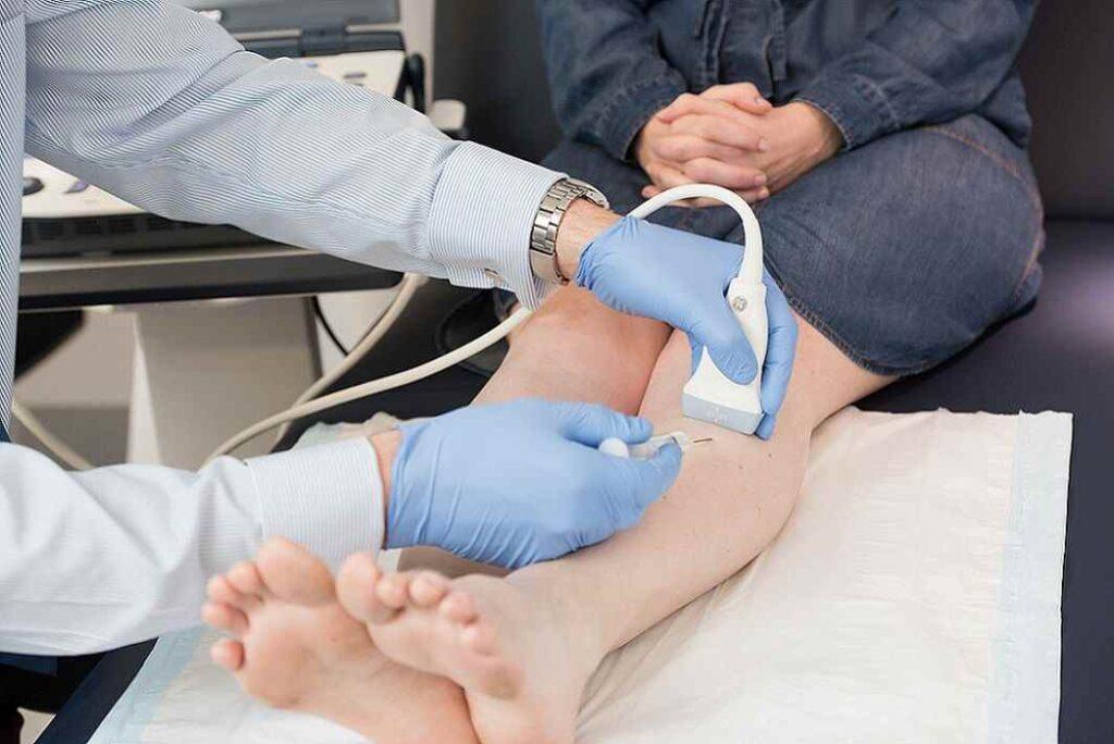 درمان واریس با اسکلروتراپی