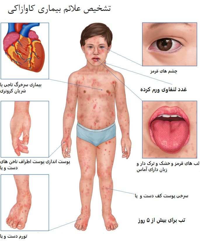 علائم بیماری کاوازاکی