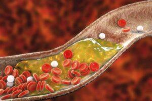 قرص چربی خون آتورواستاتین